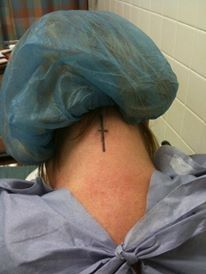 Pam scar